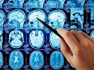 Vědci z Brna vymysleli systém, který odhaluje Parkinsonovu nemoc