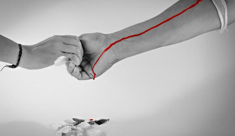 Nemocnicím chybí krev. V Kyjově musí až čtvrtinu transfúzí dokupovat