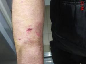 Muž z Brna vlepil partnerce facku, žena se mu za to zakousla do ruky