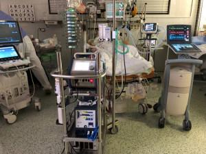 Kardiologové FN Brno zachránili pacienta s těžkým postižením srdce. Poprvé použili metodu V-A ECMO