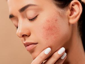 Dvě třetiny žen s rakovinou mají kožní problémy, pomáhají jim odborníci v Brně